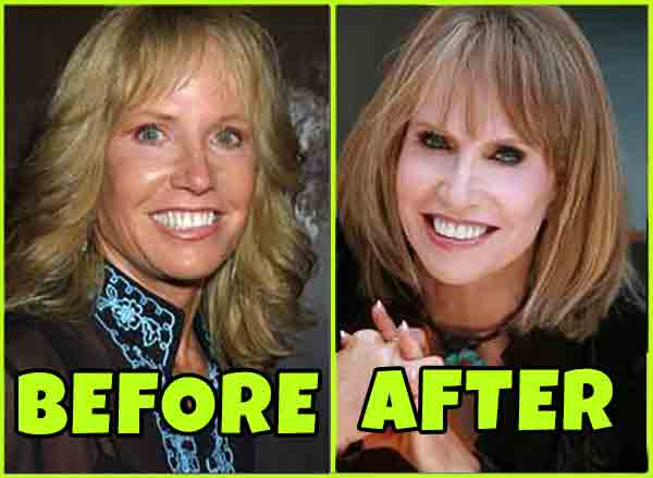 Monica Quartermaine's before and after picture after facelift