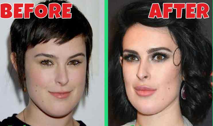 Rumer-Willis-plastic-surgery-before-after.jpg