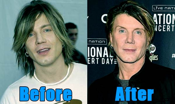 Image of John Rzeznik before and after plastic surgery