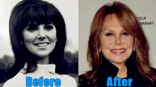 Image of Marlo Thomas plastic surgery before and after